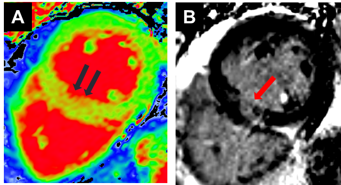 Cardiac MRI - Vanessa report 45.png