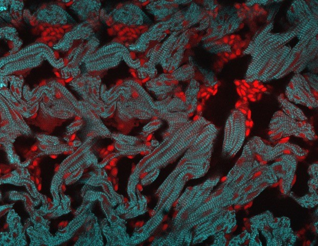 Refenerating cardiomyocytes in zebrafish heart